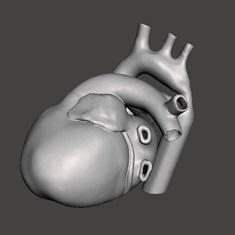 Medical 3D Printing